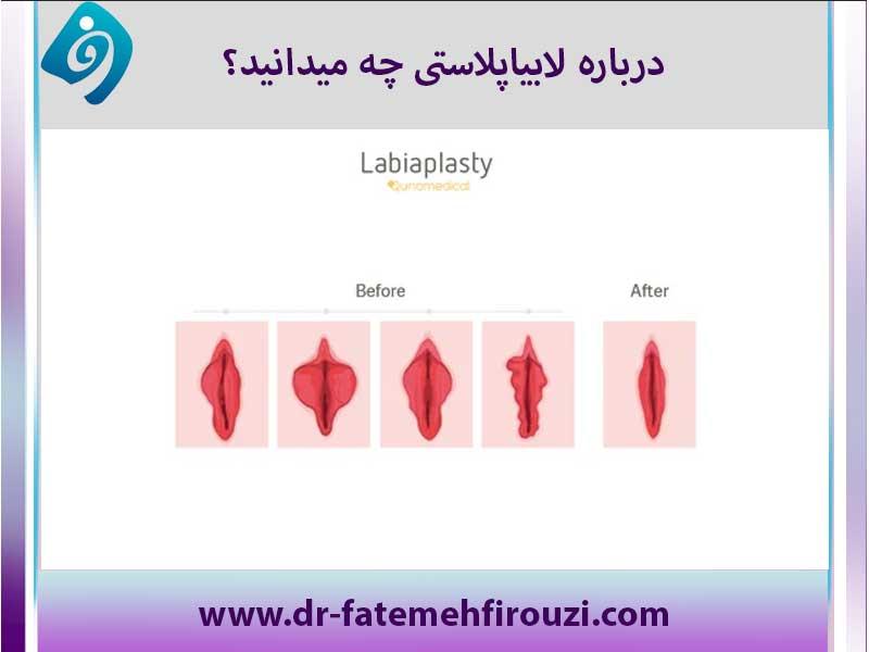 لابیاپلاستی چیست؟ بهتر است با لیزر انجام شود یا جراحی؟