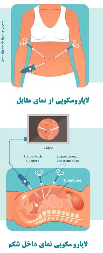لاپاروسکوپی از نمای رو به رو و داخل شکم
