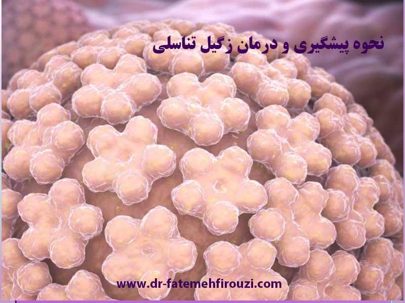 درمان زگیل تناسلی در کرج