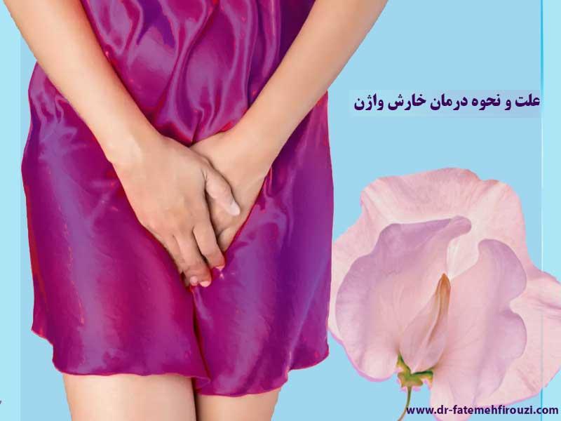علت خارش واژن، نحوه درمان و پیشگیری آن