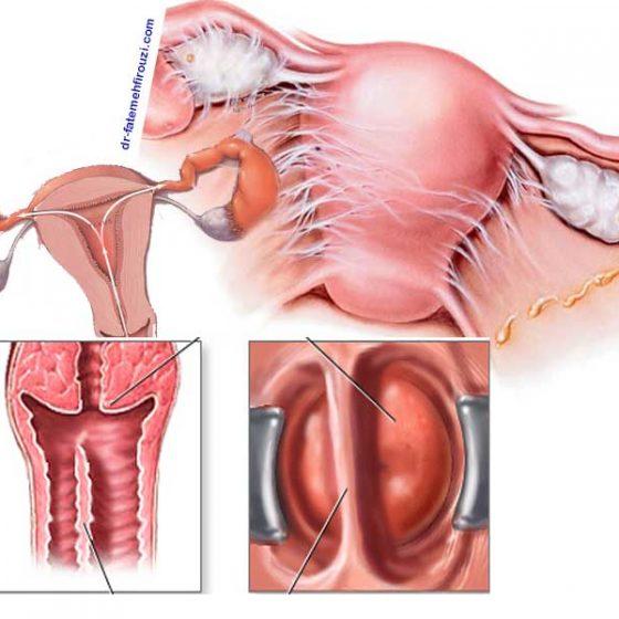 انواع بیماری های دستگاه تناسلی زنان و نحوه تشخیص آنها
